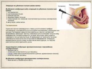 Можно ли делать гистероскопию при воспалении шейки матки