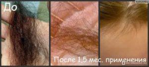 Могут ли перед месячными выпадать волосы