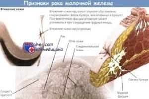 Симптом умбиликации при раке молочной железы это