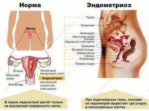 Может ли эндометриоз быть причиной скудных месячных