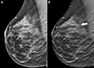 Мастопатия молочных желез делать узи или маммография