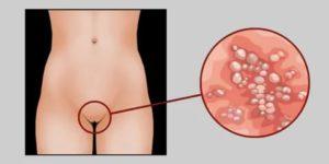 Является ли молочница венерологическим заболеванием