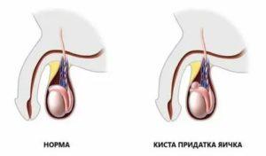 Какого размера может быть киста семенного канатика у ребенка