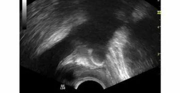 Диффузные изменения предстательной железы с наличием микрокальцинатов