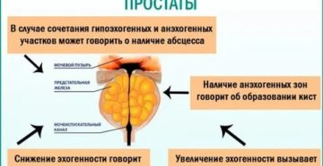 Эхографические признаки хронического простатита что это такое