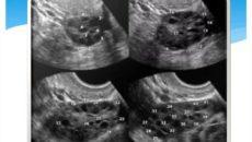 Чем отличается склерополикистоз яичников от поликистоза яичников