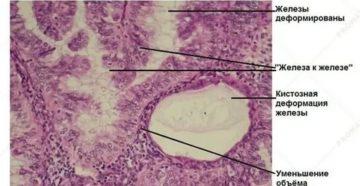 Чем лечить железисто кистозной гиперплазия эндометрия активной формы