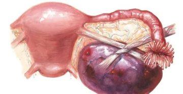Что такое перитонит при кисте яичника