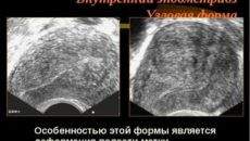 Эхографические признаки внутреннего эндометриоза что это такое