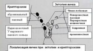 Яички в паховом канале у ребенка 6 лет на узи